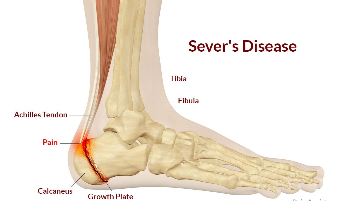 Sever's disease - The Foot Group