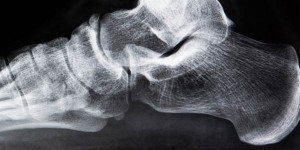 X-ray of ankle