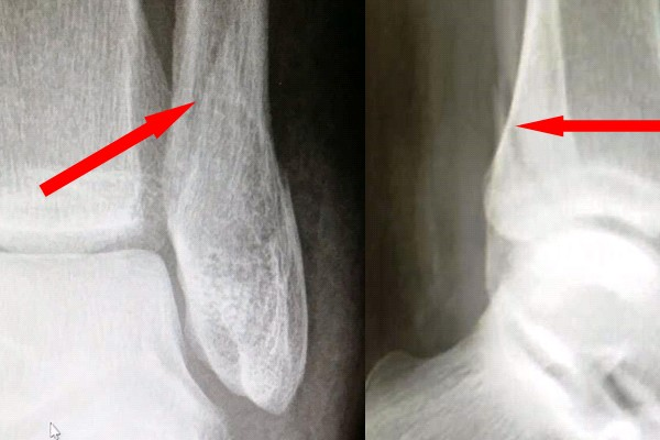 Mike's broken ankle – X-ray 1