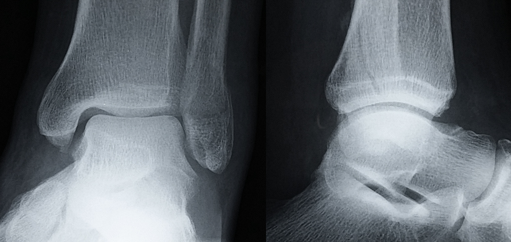 how long does a broken ankle take to heal   mccnsulting