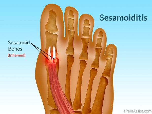 Sesamoiditis: Why the ball of your foot is killing you - The Foot Group