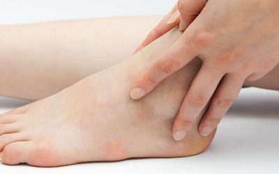 Ankle injuries – The Foot Group