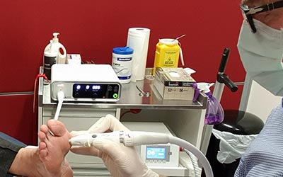 Fast, effective wart removal with the SWIFT microwave technology